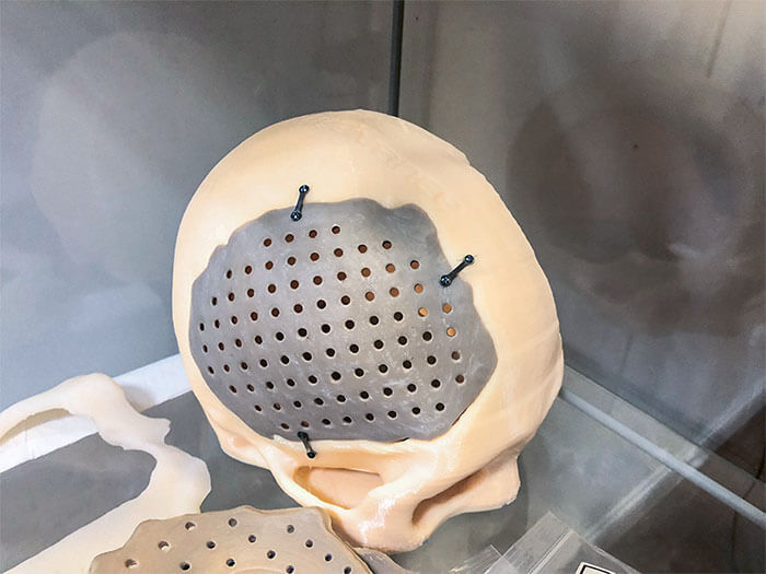 cranial implants from Vestakeep-filaments